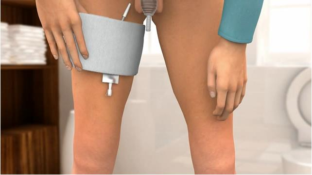 Self-Catheterization for Females